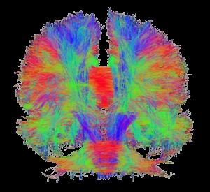 Nureoscan of Dr. Dar Meshi's Brain